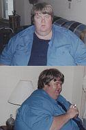 Bob - before