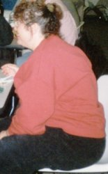 Sue F. - before